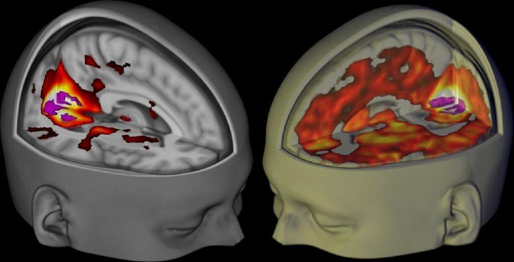Neuroplasticidade, rede de modo padrão, psicodélicos